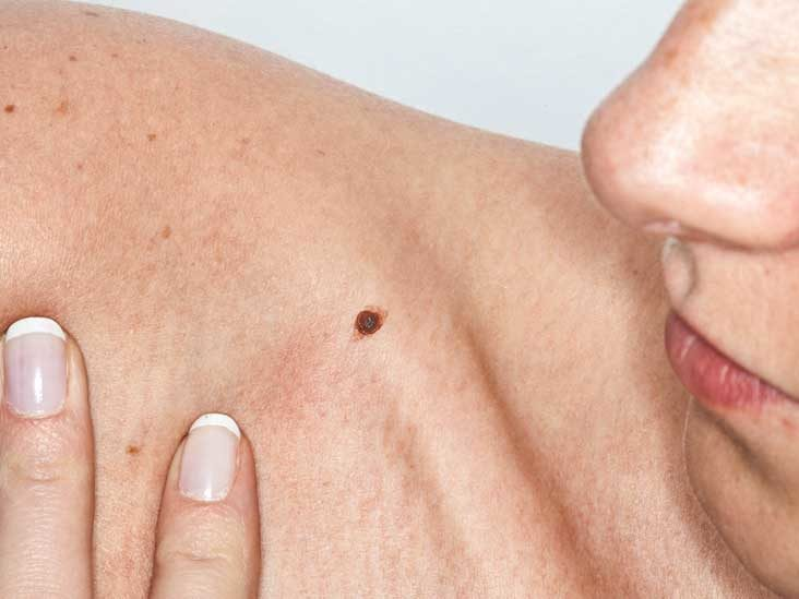 What You Need to Know about Skin Cancer- A Brief Guide